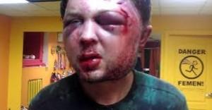 Massacrato l'ideologo di Femen. L'organizzazione punta il dito contro i servizi di sicurezza