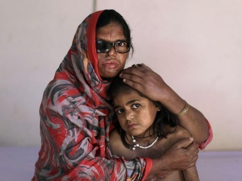 Galerie - Azim Mai et sa fille Shaziya à la Fondation des survivants à l'acide à Islamabad le 13 décembre 2011