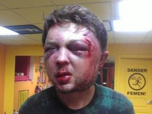 Massacrato di botte l'ideologo delle Femen.